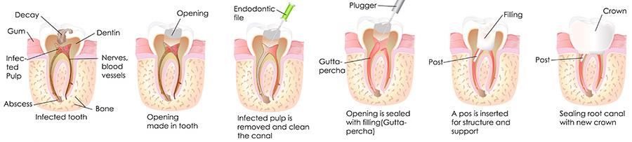 Rialto dentist | root canals | Rialto Family Dental Center