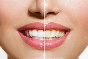 Rialto cosmetic dentist  teeth whitening   Rialto Family Dental Center